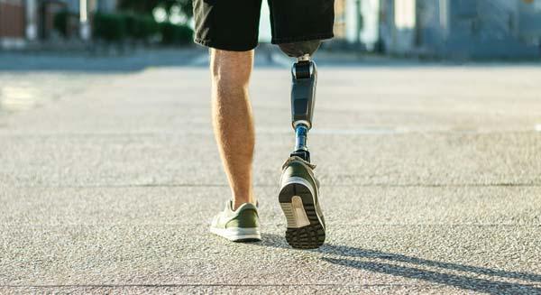 Man walking with prosthetic leg after amputation
